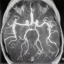 Диагностика головы