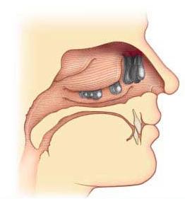 Аномалия развития слизистой носа