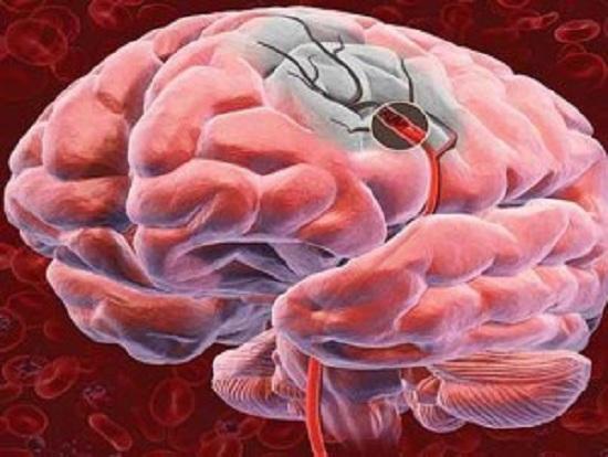 Поражение мозга