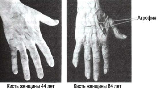 Атрофия рук