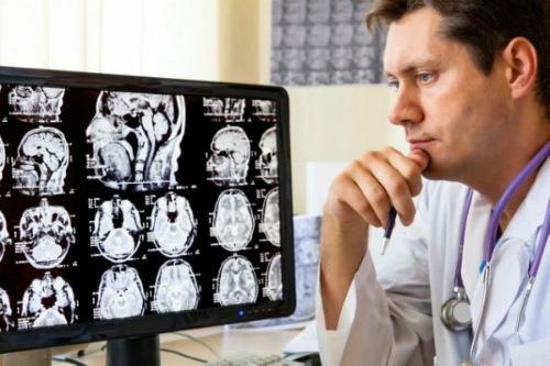 снимок головного мозг